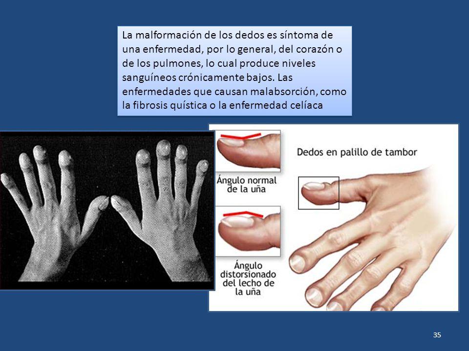 35 La malformación de los dedos es síntoma de una enfermedad, por lo general, del corazón o de los pulmones, lo cual produce niveles sanguíneos crónic
