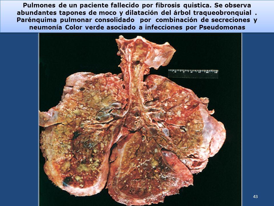 Pulmones de un paciente fallecido por fibrosis quistica. Se observa abundantes tapones de moco y dilatación del árbol traqueobronquial. Parénquima pul