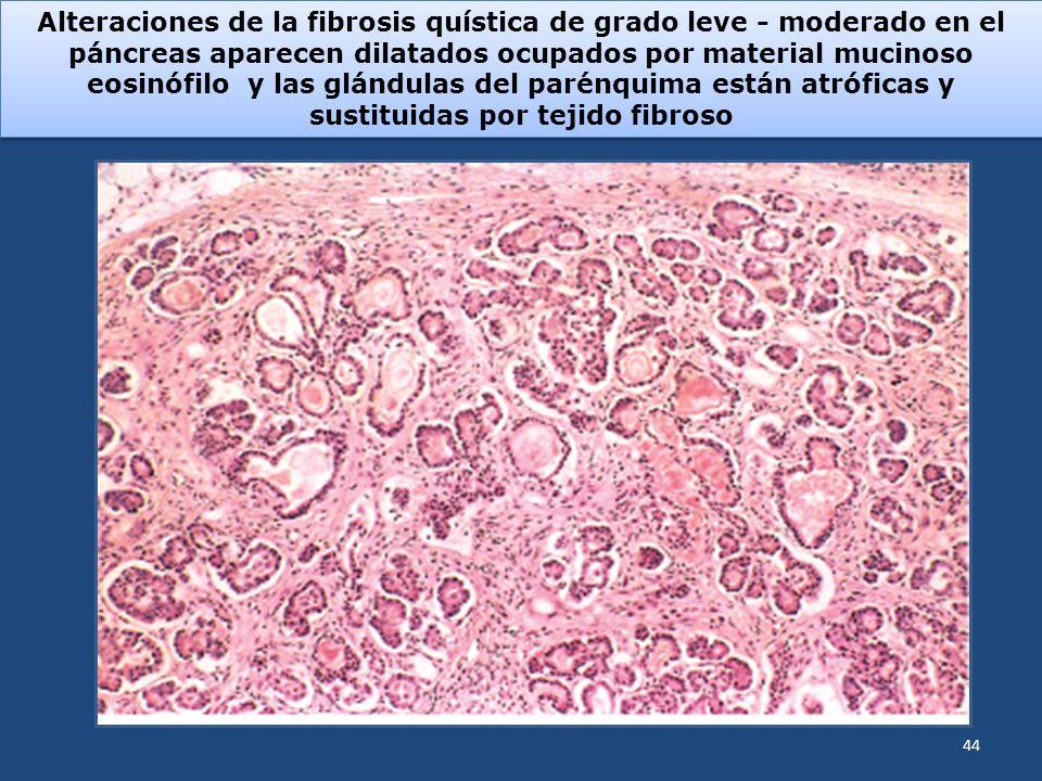 Alteraciones de la fibrosis quística de grado leve - moderado en el páncreas aparecen dilatados ocupados por material mucinoso eosinófilo y las glándu