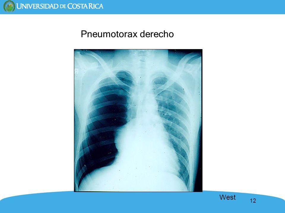12 Pneumotorax derecho West
