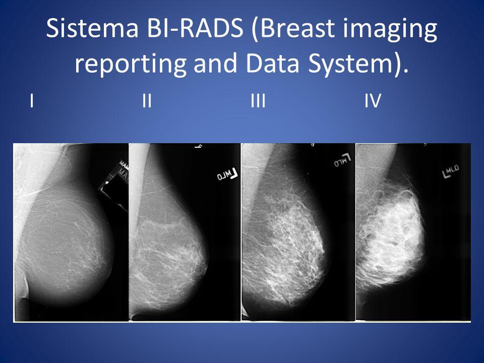 Sistema BI-RADS (Breast imaging reporting and Data System). I II III IV