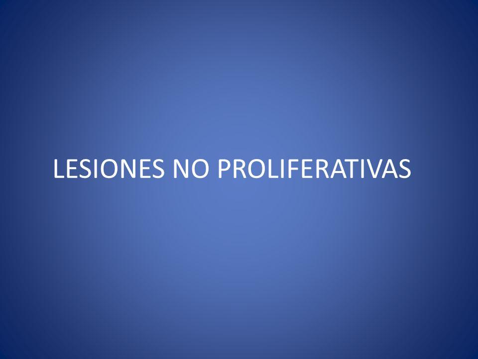 LESIONES NO PROLIFERATIVAS
