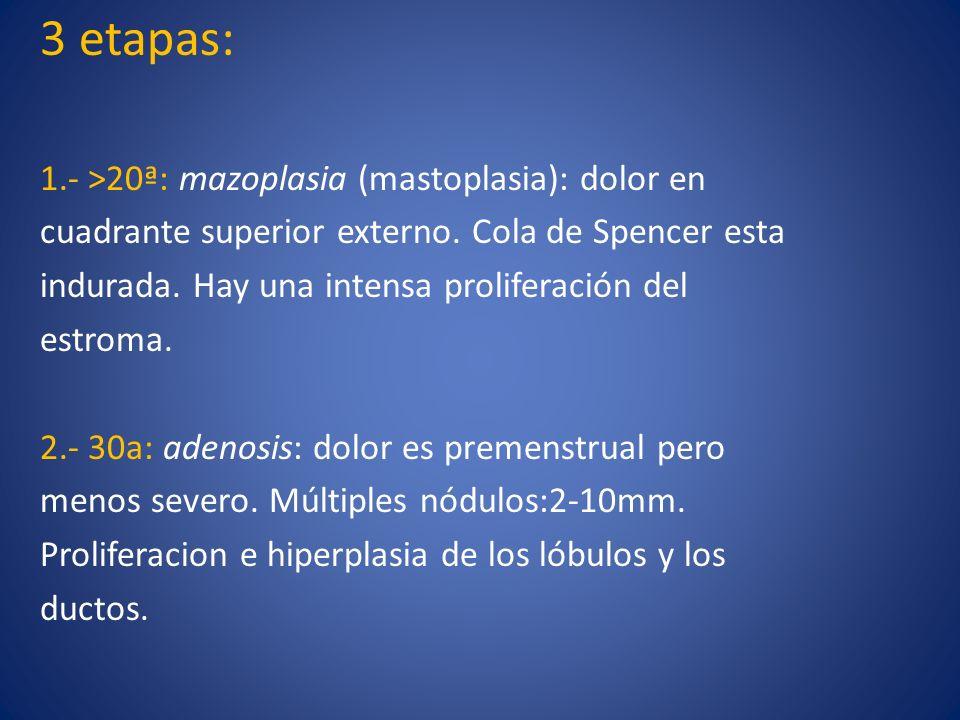 3 etapas: 1.- >20ª: mazoplasia (mastoplasia): dolor en cuadrante superior externo. Cola de Spencer esta indurada. Hay una intensa proliferación del es