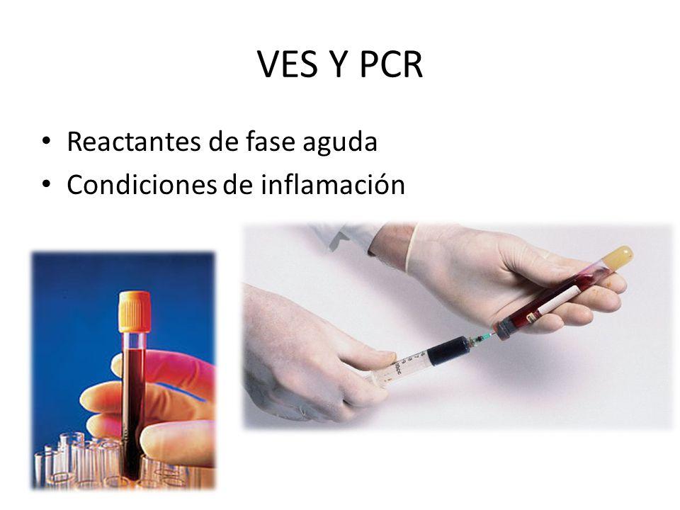 VES Y PCR Reactantes de fase aguda Condiciones de inflamación