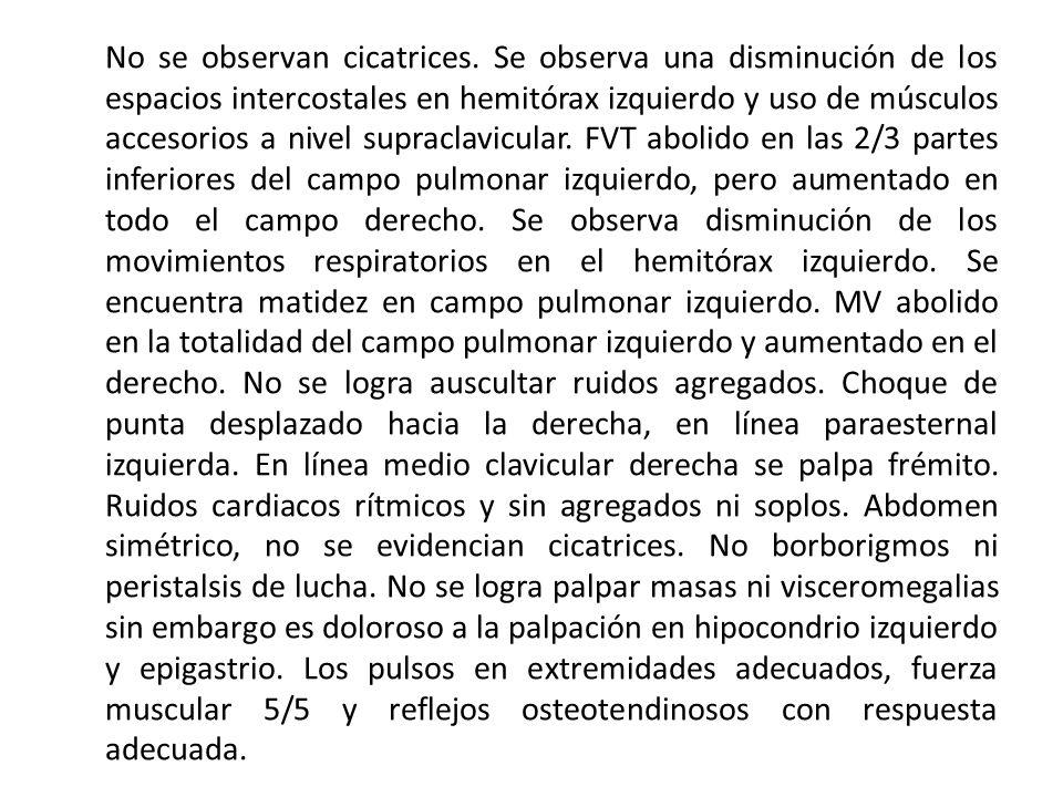 Laboratorio.Análisis de Líquido pleural.