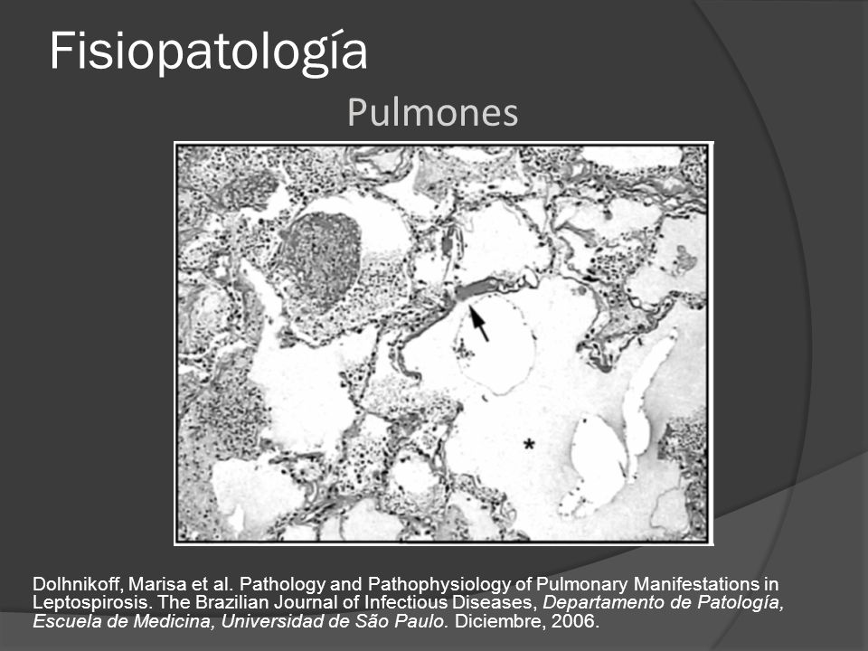 Fisiopatología Dolhnikoff, Marisa et al. Pathology and Pathophysiology of Pulmonary Manifestations in Leptospirosis. The Brazilian Journal of Infectio