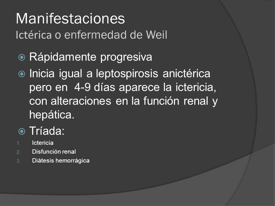 Manifestaciones Ictérica o enfermedad de Weil Rápidamente progresiva Inicia igual a leptospirosis anictérica pero en 4-9 días aparece la ictericia, co