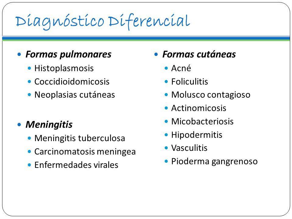 Diagnóstico Diferencial Formas pulmonares Histoplasmosis Coccidioidomicosis Neoplasias cutáneas Meningitis Meningitis tuberculosa Carcinomatosis menin