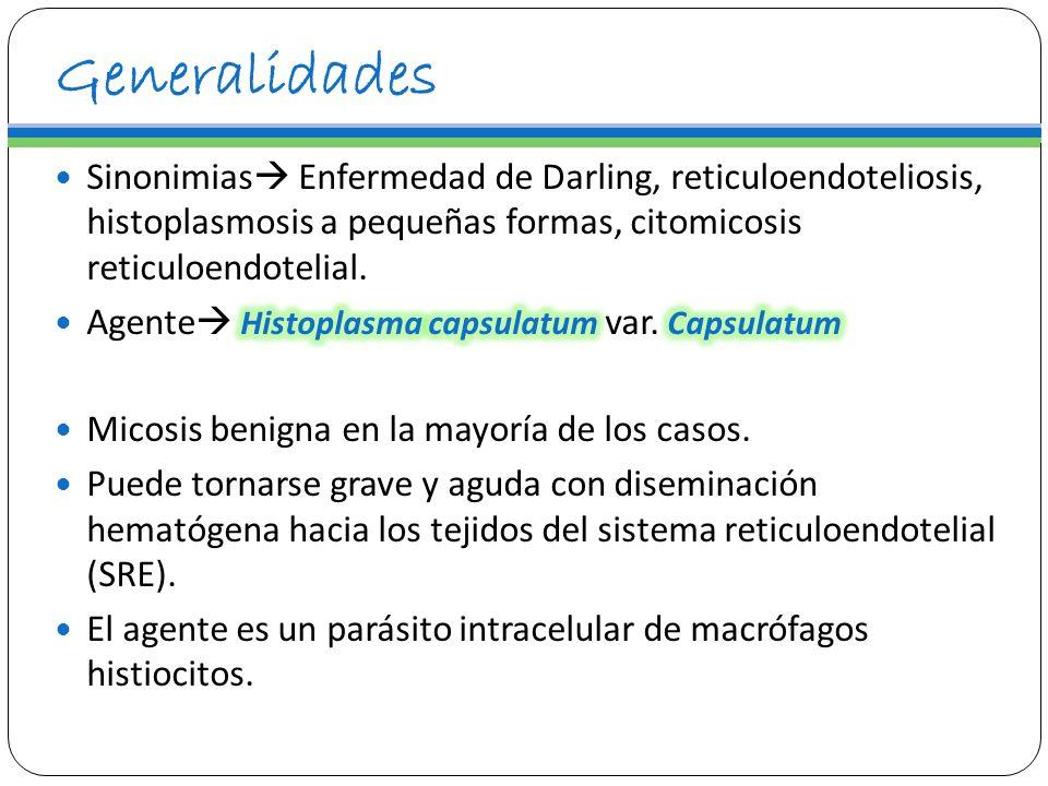 Manifestaciones Clínicas Histoplasmoma Lesión residual delimitada A nivel pulmonar o extrapulmonar A partir de cuadro primario en resolución por fibrosis.