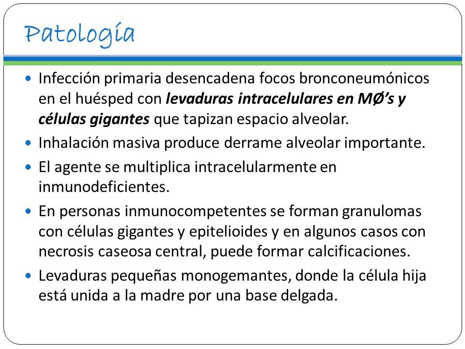 Patología Infección primaria desencadena focos bronconeumónicos en el huésped con levaduras intracelulares en MØs y células gigantes que tapizan espac