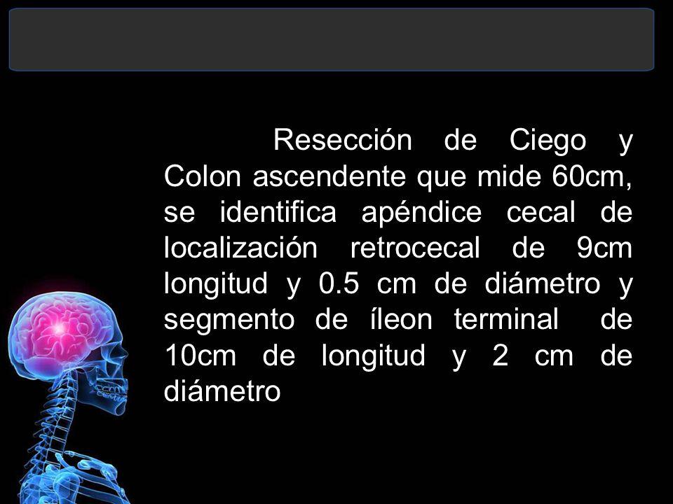 Resección de Ciego y Colon ascendente que mide 60cm, se identifica apéndice cecal de localización retrocecal de 9cm longitud y 0.5 cm de diámetro y se