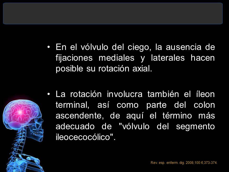 En el vólvulo del ciego, la ausencia de fijaciones mediales y laterales hacen posible su rotación axial. La rotación involucra también el íleon termin
