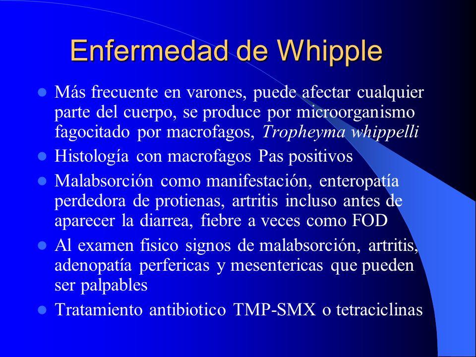 Enfermedad de Whipple Más frecuente en varones, puede afectar cualquier parte del cuerpo, se produce por microorganismo fagocitado por macrofagos, Tro