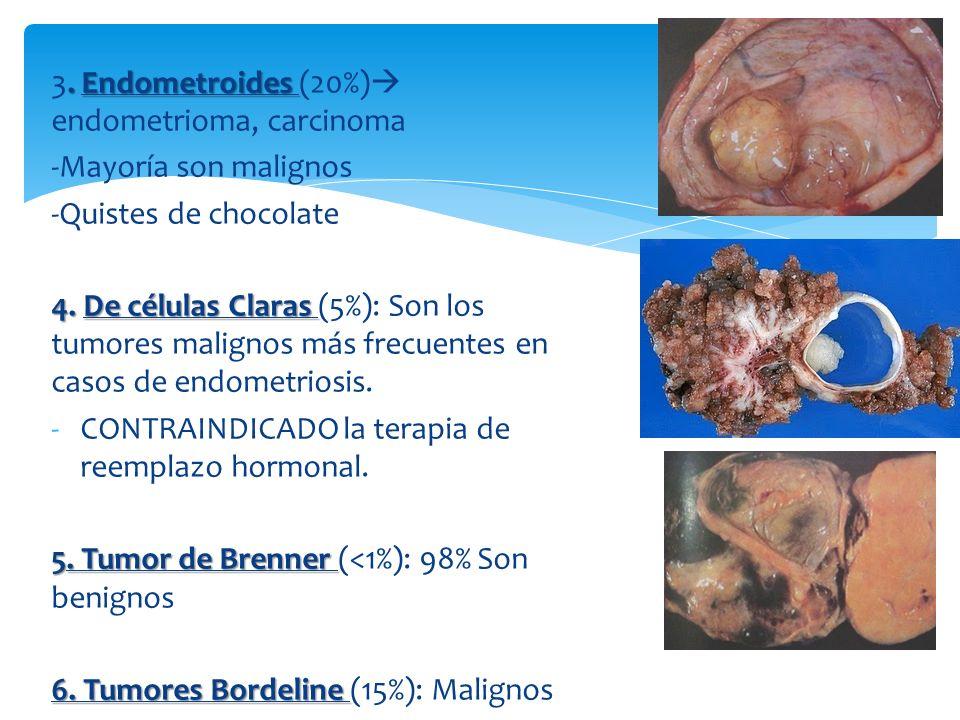 60 % de los tumores ováricos en mujeres jóvenes 90% son teratoma quístico maduro benigno 1.Teratoma quístico benigno 2.Disgerminoma Germinal maligno más frecuente en menores de 30 años.