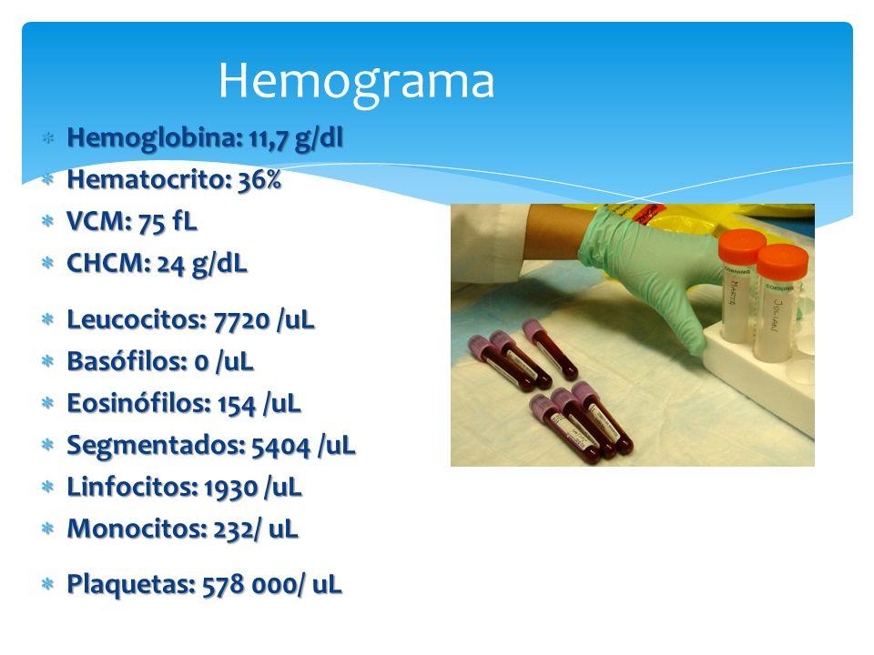 Hemoglobina: 11,7 g/dl Hemoglobina: 11,7 g/dl Hematocrito: 36% Hematocrito: 36% VCM: 75 fL VCM: 75 fL CHCM: 24 g/dL CHCM: 24 g/dL Leucocitos: 7720 /uL