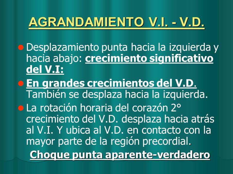 AGRANDAMIENTO V.I. - V.D. Desplazamiento punta hacia la izquierda y hacia abajo: crecimiento significativo del V.I: En grandes crecimientos del V.D. T
