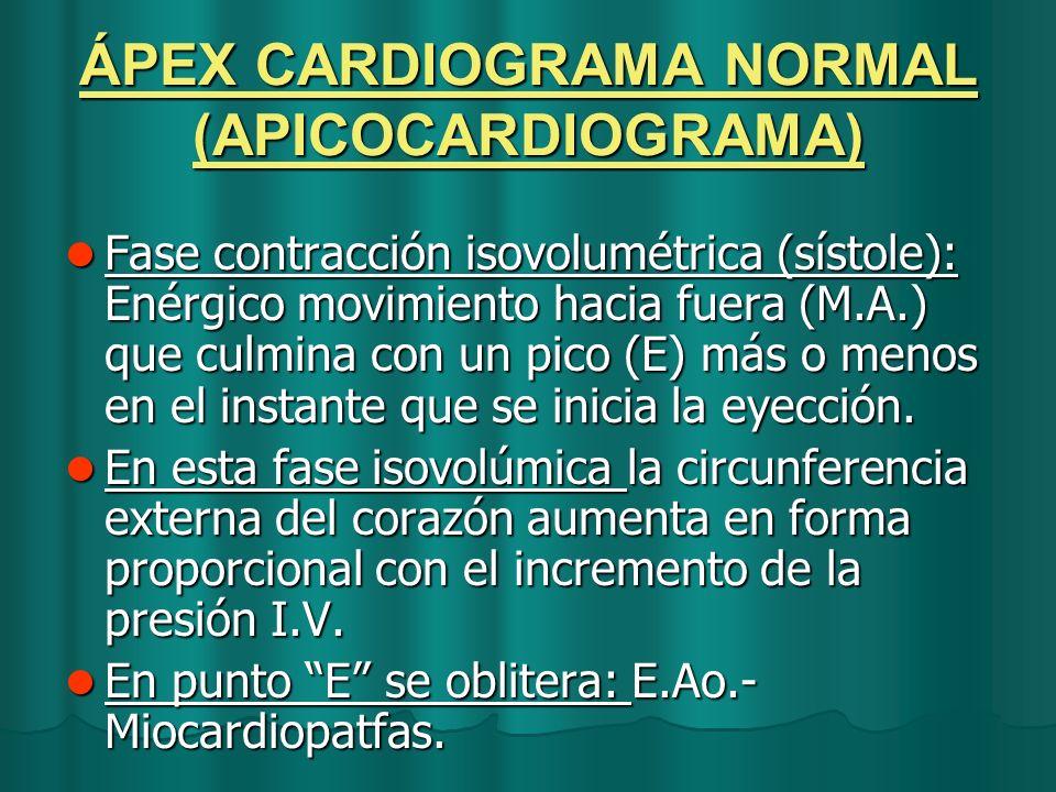 ÁPEX CARDIOGRAMA NORMAL (APICOCARDIOGRAMA) Fase contracción isovolumétrica (sístole): Enérgico movimiento hacia fuera (M.A.) que culmina con un pico (