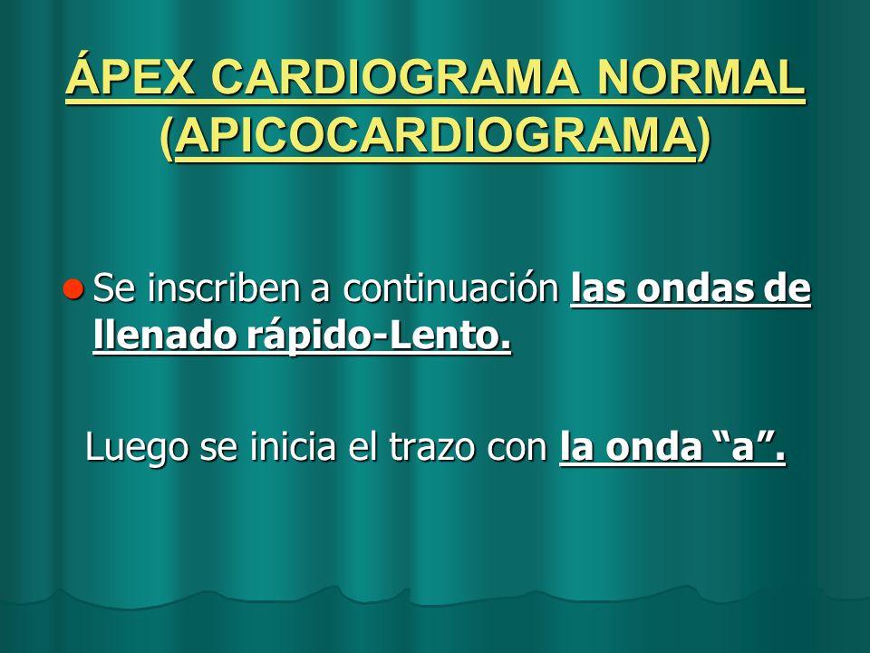 ÁPEX CARDIOGRAMA NORMAL (APICOCARDIOGRAMA) Se inscriben a continuación las ondas de llenado rápido-Lento. Se inscriben a continuación las ondas de lle