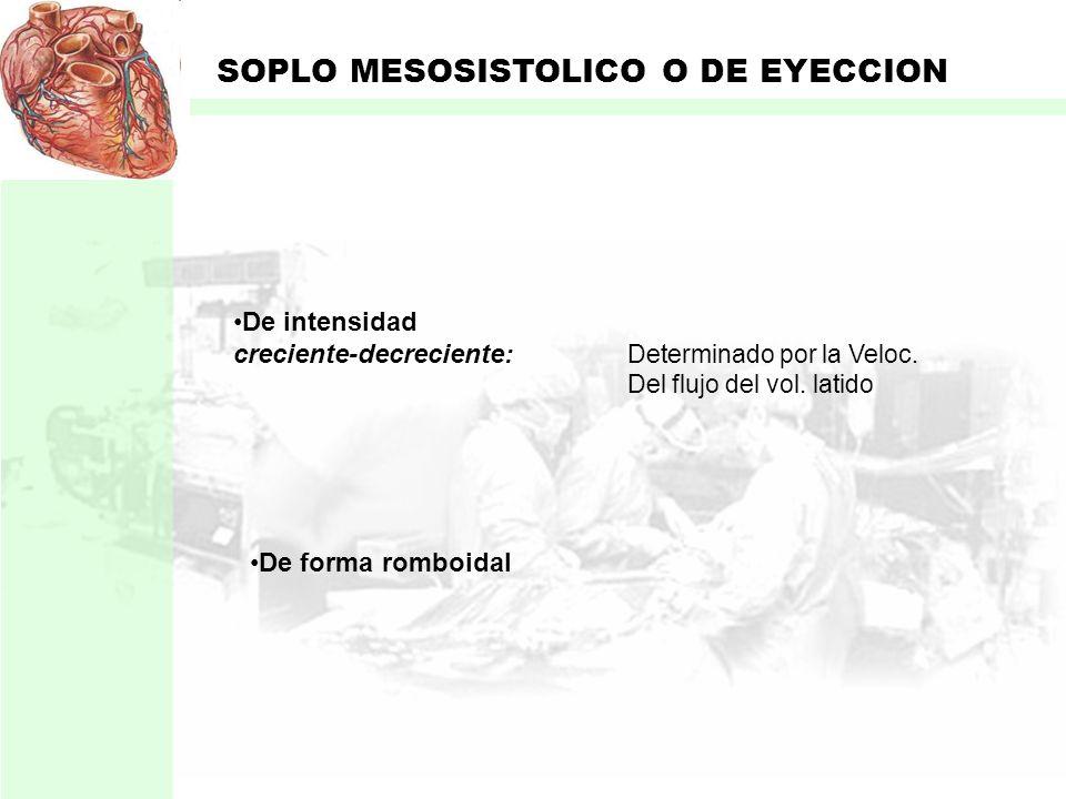 SOPLO MESOSISTOLICO O DE EYECCION Originado por: Expulsión de la sangre (sistole) Desde los ventrículos A. Aorta A. Pulmonar Se ausculta entre el S1 -