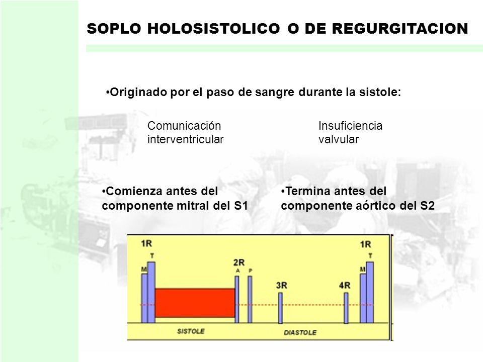 En estenosis Aortica o Pulmonar: El gradiente de presión Se prolonga durante toda la sístole Intensidad Duración Y el soplo SOPLO MESOSISTOLICO O DE E