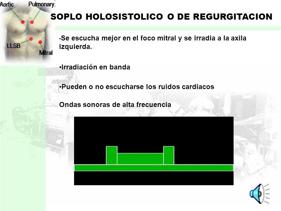 SOPLO HOLOSISTOLICO O DE REGURGITACION Originado por el paso de sangre durante la sistole: Comunicación interventricular Insuficiencia valvular Comien