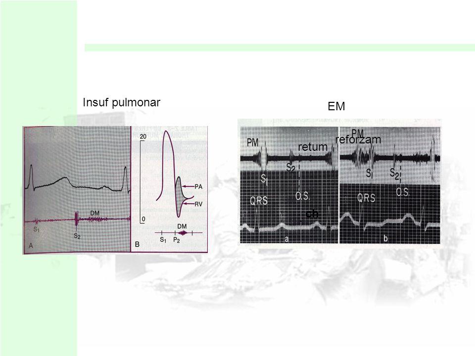 Meso diastolicos Se origina durante la fase de llenado rápido a través de las válvulas AV EM: retumbo clásico : paciente en posición de Pachon y se di