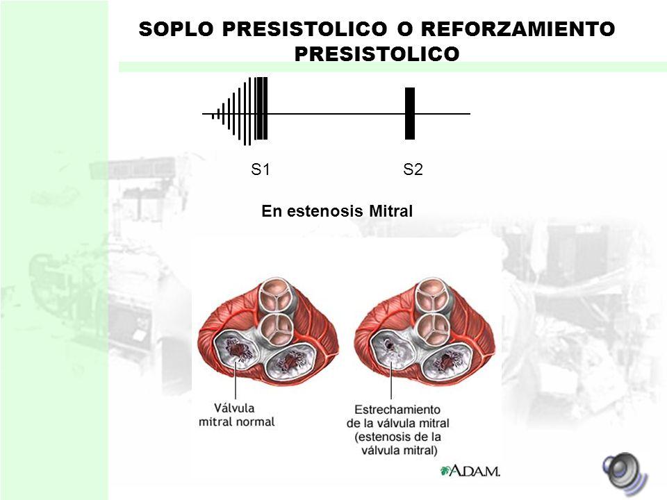 SOPLO PRESISTOLICO O REFORZAMIENTO PRESISTOLICO Originado por : Flujo sanguíneo a través de las válvulas auriculoventriculares durante el llenado vent