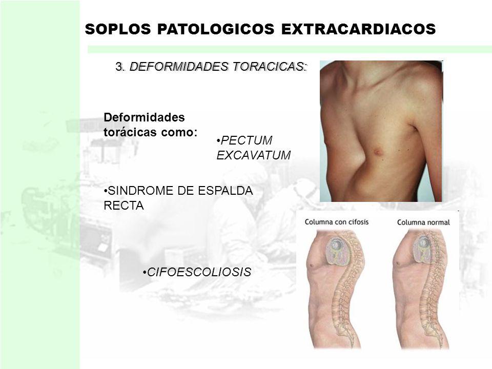 1. ESTADOS CIRCULATORIOS HIPERQUINETICOS SOPLOS PATOLOGICOS EXTRACARDIACOS Mas frecuente. Soplo de eyeccion aortica: Originado por:Veloc. de eyección
