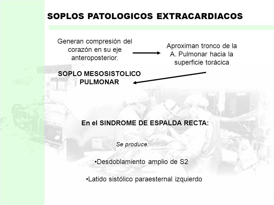3. DEFORMIDADES TORACICAS: Deformidades torácicas como: PECTUM EXCAVATUM SINDROME DE ESPALDA RECTA CIFOESCOLIOSIS SOPLOS PATOLOGICOS EXTRACARDIACOS