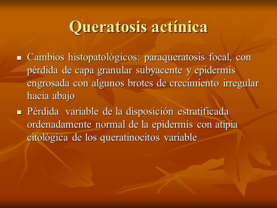 Queratosis actínica Cambios histopatológicos: paraqueratosis focal, con pérdida de capa granular subyacente y epidermis engrosada con algunos brotes d