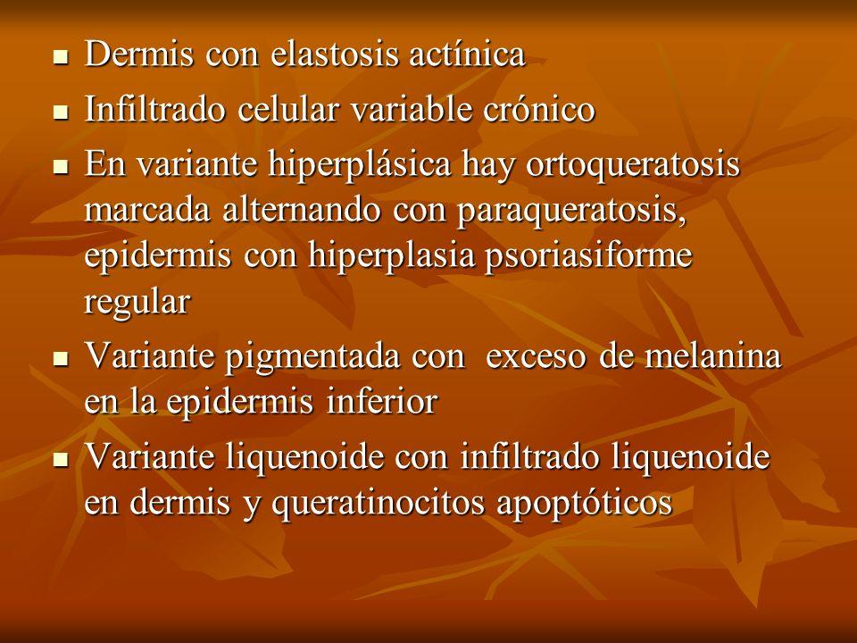 Dermis con elastosis actínica Dermis con elastosis actínica Infiltrado celular variable crónico Infiltrado celular variable crónico En variante hiperp