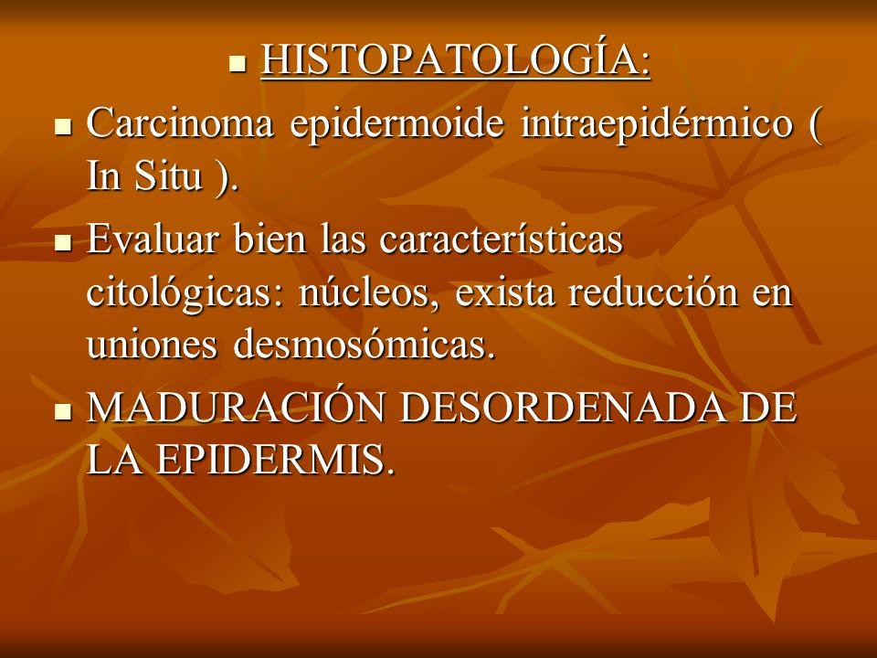 HISTOPATOLOGÍA: HISTOPATOLOGÍA: Carcinoma epidermoide intraepidérmico ( In Situ ). Carcinoma epidermoide intraepidérmico ( In Situ ). Evaluar bien las