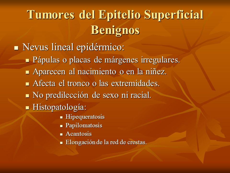 Tumores del Epitelio Superficial Benignos Nevus lineal epidérmico: Nevus lineal epidérmico: Pápulas o placas de márgenes irregulares. Pápulas o placas