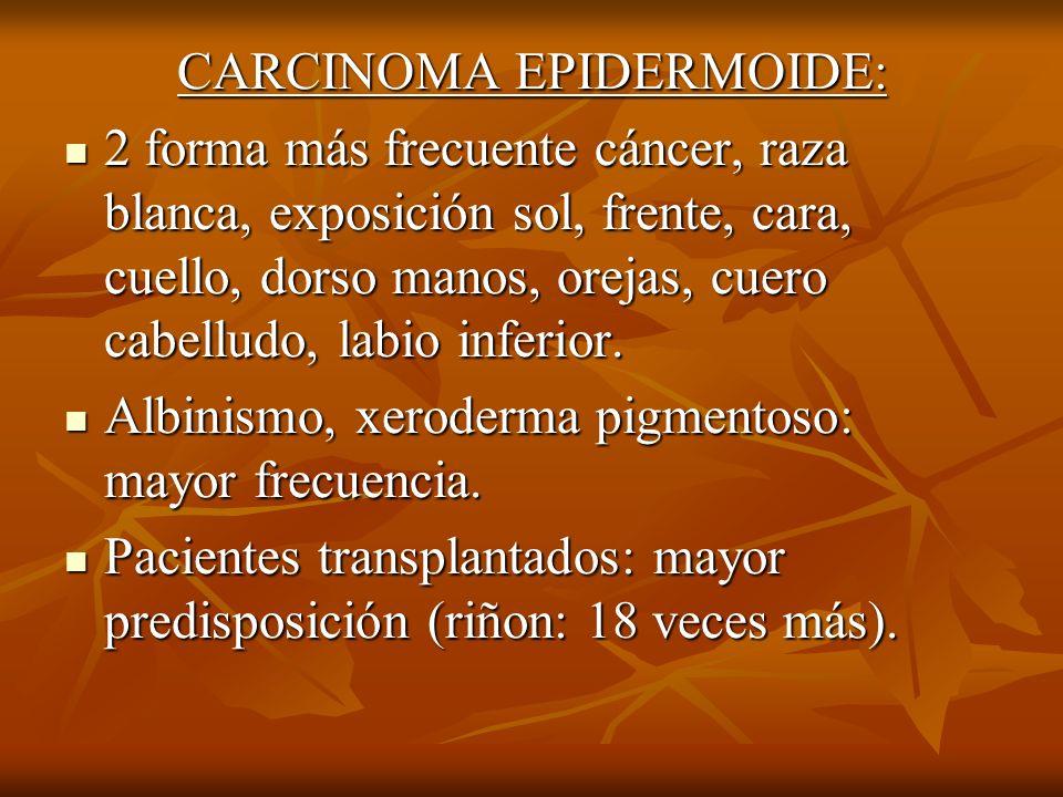 CARCINOMA EPIDERMOIDE: 2 forma más frecuente cáncer, raza blanca, exposición sol, frente, cara, cuello, dorso manos, orejas, cuero cabelludo, labio in