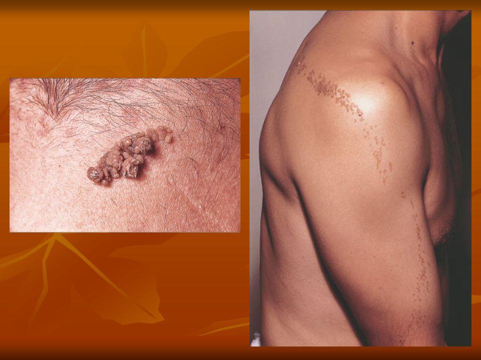 Presentación Clínica: Presentación Clínica: Variable, lesión papulonodular, bordes traslúcidos perlados, lesión ulcerada destructiva, placa pálida, placa eritematosa con telangiectasias, nódulo parcialmente quístico, lesiones pigmentadas en 2-5% más aún en raza negra o japoneses.