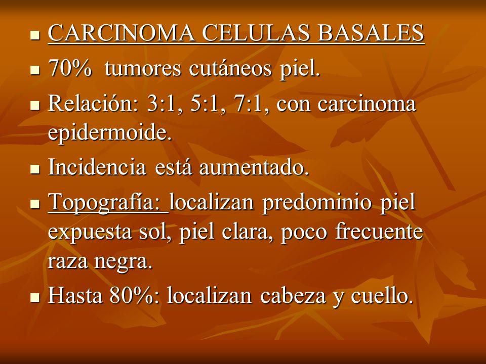 CARCINOMA CELULAS BASALES CARCINOMA CELULAS BASALES 70% tumores cutáneos piel. 70% tumores cutáneos piel. Relación: 3:1, 5:1, 7:1, con carcinoma epide
