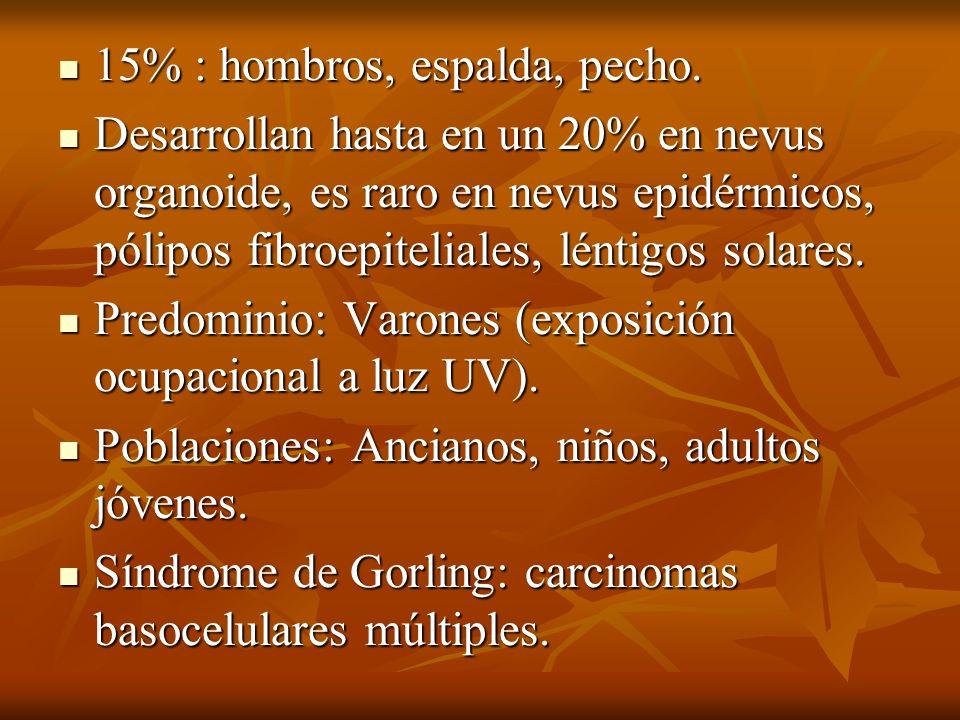 15% : hombros, espalda, pecho. 15% : hombros, espalda, pecho. Desarrollan hasta en un 20% en nevus organoide, es raro en nevus epidérmicos, pólipos fi
