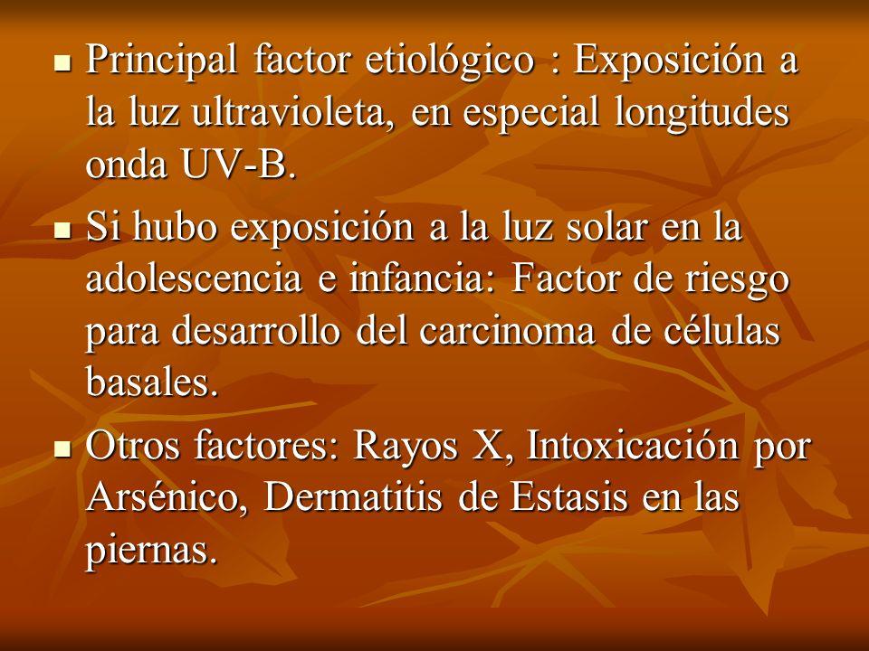 Principal factor etiológico : Exposición a la luz ultravioleta, en especial longitudes onda UV-B. Principal factor etiológico : Exposición a la luz ul