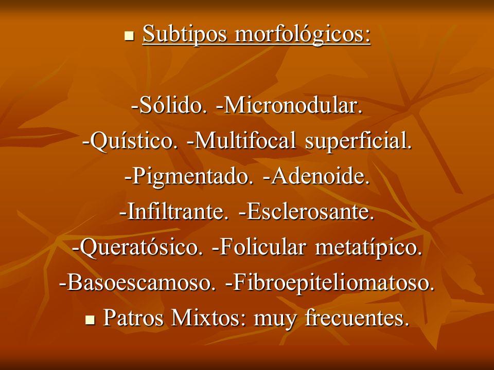 Subtipos morfológicos: Subtipos morfológicos: -Sólido. -Micronodular. -Quístico. -Multifocal superficial. -Pigmentado. -Adenoide. -Infiltrante. -Escle