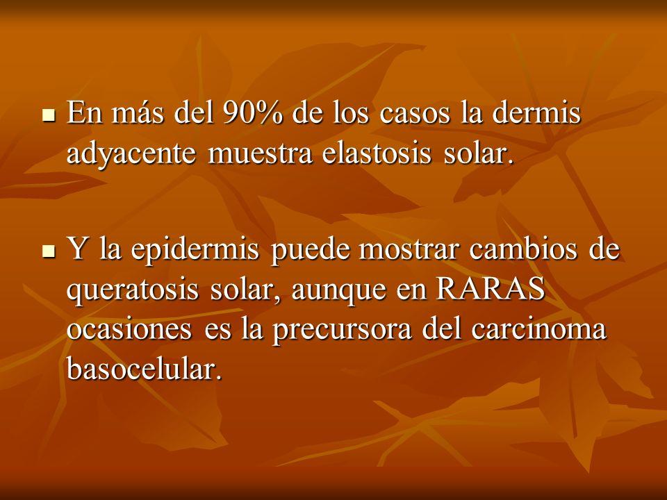 En más del 90% de los casos la dermis adyacente muestra elastosis solar. En más del 90% de los casos la dermis adyacente muestra elastosis solar. Y la
