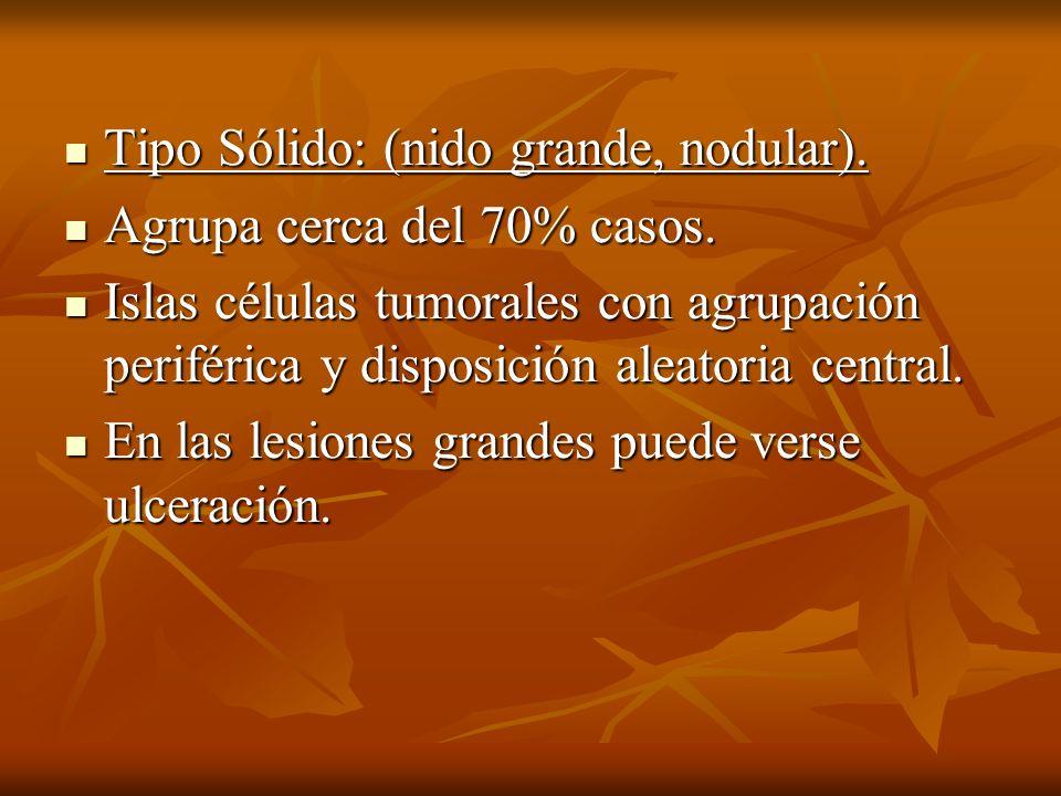 Tipo Sólido: (nido grande, nodular). Tipo Sólido: (nido grande, nodular). Agrupa cerca del 70% casos. Agrupa cerca del 70% casos. Islas células tumora