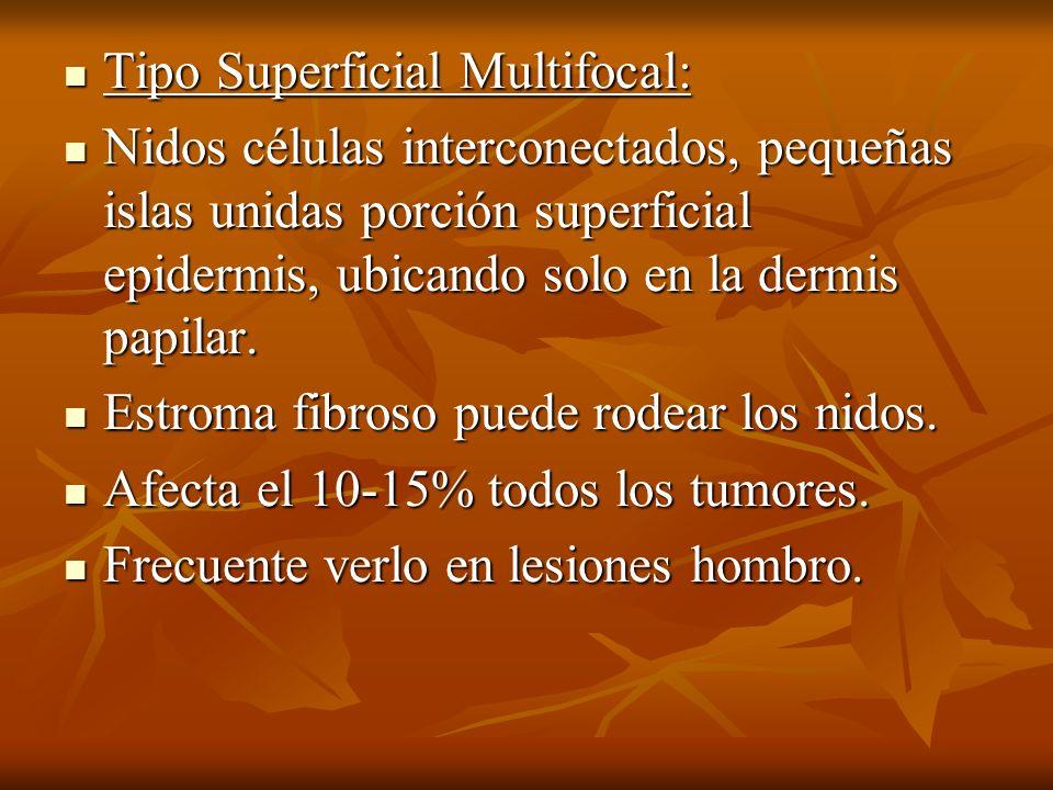 Tipo Superficial Multifocal: Tipo Superficial Multifocal: Nidos células interconectados, pequeñas islas unidas porción superficial epidermis, ubicando