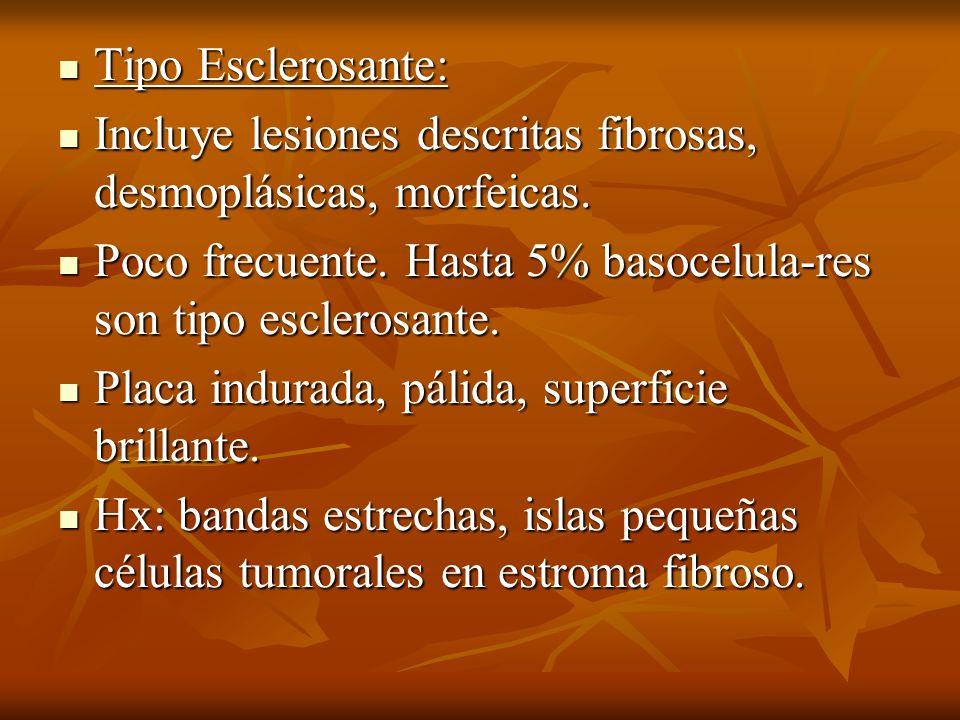 Tipo Esclerosante: Tipo Esclerosante: Incluye lesiones descritas fibrosas, desmoplásicas, morfeicas. Incluye lesiones descritas fibrosas, desmoplásica