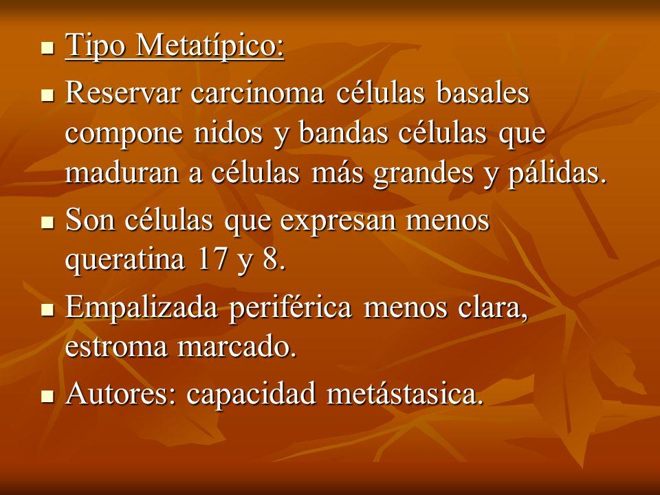 Tipo Metatípico: Tipo Metatípico: Reservar carcinoma células basales compone nidos y bandas células que maduran a células más grandes y pálidas. Reser