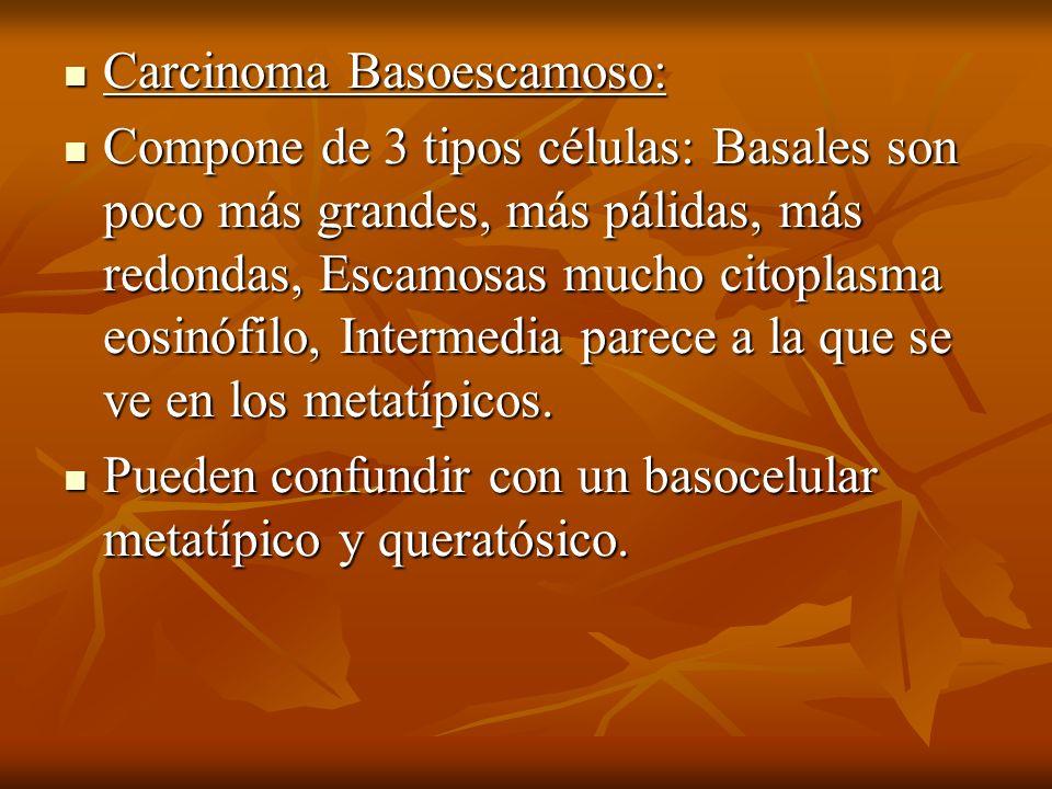 Carcinoma Basoescamoso: Carcinoma Basoescamoso: Compone de 3 tipos células: Basales son poco más grandes, más pálidas, más redondas, Escamosas mucho c