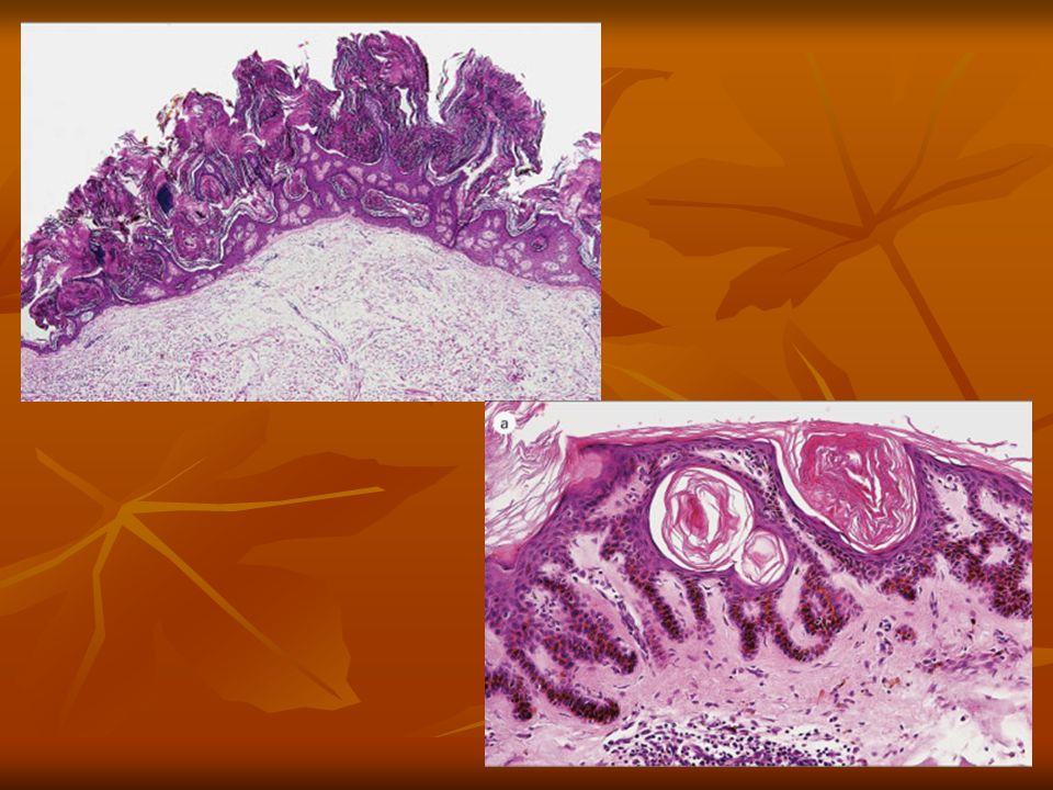 Displasias epidérmicas Queratosis actínica Lesiones eritematosas escamosas circunscritas, generalmente de menos de 1 cm en piel expuesta en individuos mayores 10-20% transformación maligna Pueden originar un carcinoma epidermoide in situ, y algunos las consideran carcinomas epidermoides in situ por sí mismas.