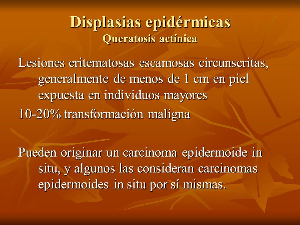 Displasias epidérmicas Queratosis actínica Lesiones eritematosas escamosas circunscritas, generalmente de menos de 1 cm en piel expuesta en individuos