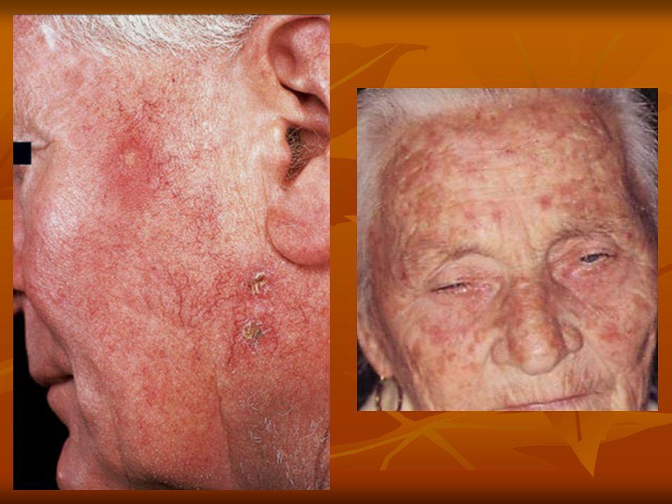 Eritroplasia de Queyrat: Topografía: Superficie interna prepucio, glande, surco coronal, no circuncidados.