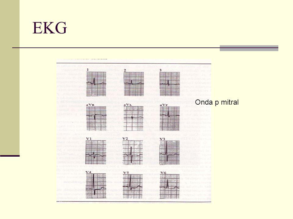 EKG Onda p mitral