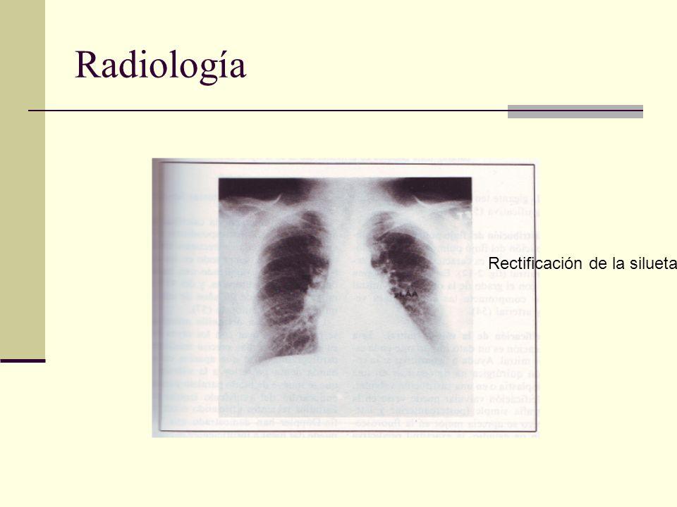 Radiología Rectificación de la silueta